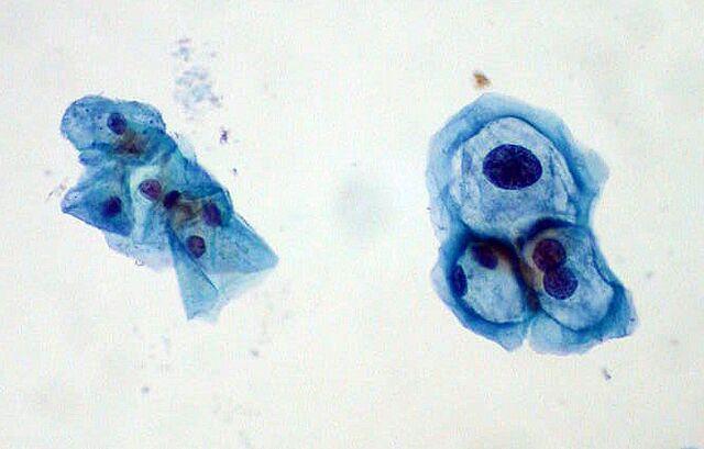 File:ThinPrep Pap smear HPV.jpeg