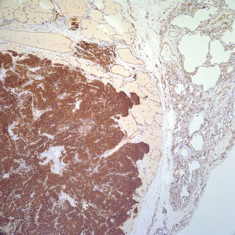 File:CD31.metastatic spindle cell angiosarcoma.4.jpg