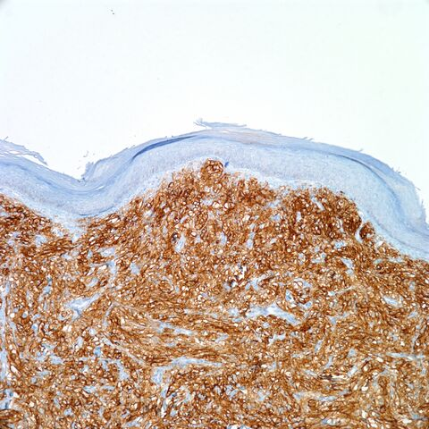 File:CD10.cutaneous pecoma.100x.3.jpg