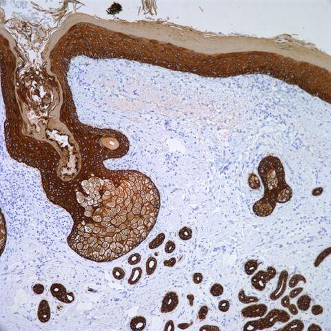 File:AE1.AE3 Cytokeratin Skin.jpg