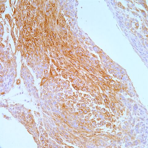 File:Type IV collagen.epithelioid schwannoma.3.jpg
