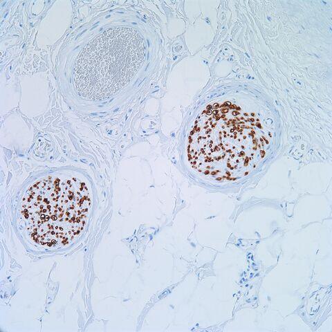 File:CD57.nerve.200x.1.jpg