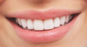 White-Teeth