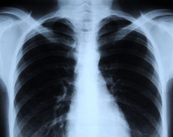 File:X-ray.jpg