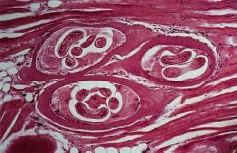 File:Trichinosis.jpg