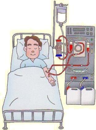 File:Dialysis.jpg