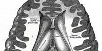 Interthalamic adhesion
