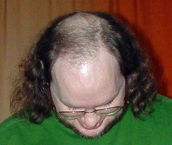 File:Male pattern baldness.jpg