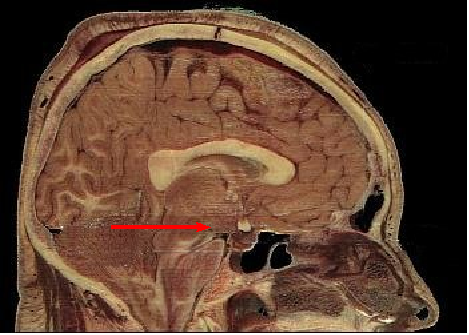 File:Hypothalamus.png
