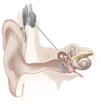 File:Cochlear implant-1-.jpg
