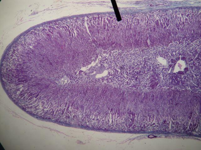 File:Adrenal gland (cortex).JPG