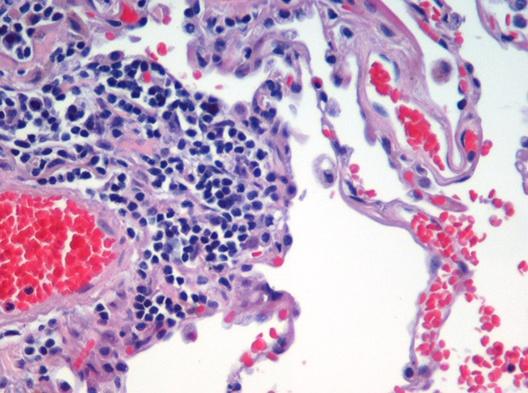 File:Emphysema H and E.jpg
