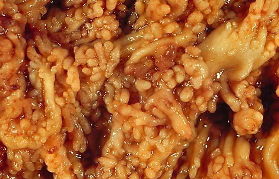 File:Chronic Ulcerative Colitis 1.jpg