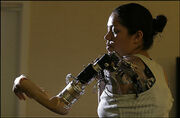 Claudia Mitchell - first thought-controlled prosthetic limb