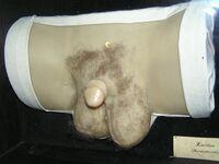 Wax human hermaphrodit genital 1