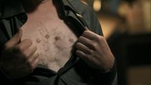 1x07 Druitt Electroshock marks