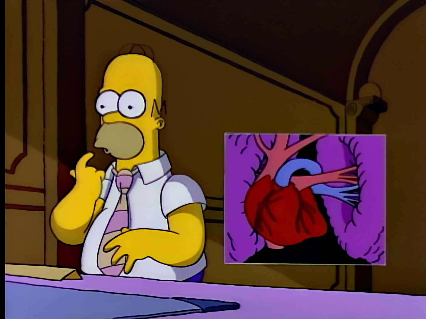 File:Homer's Triple Bypass 27.JPG