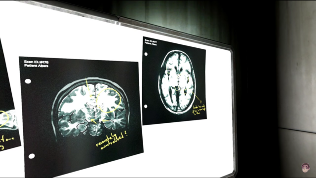 File:Akers Brain scan.png