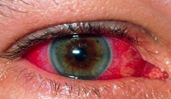 File:M155432-Uveitis of the eye 342x198.jpg