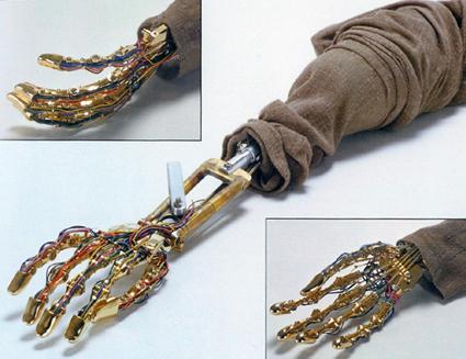 File:Anakin robo arm.jpg