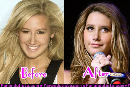 File:Ashley-tisdale-new-nose-001.jpg