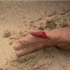 Aras' cut toe.