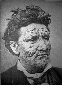 File:200px-Leprosy.jpg