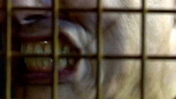 File:Jack's teeth.jpg