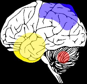 File:COOS brain affectation.png