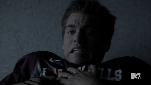 Datei:Teen Wolf Season 4 Episode 8 Time of Death Liam says please don't chop me.png