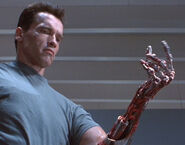 Terminator-arm endo