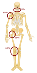 File:P-rediclationofosteosarcoma2.PNG