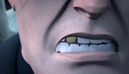 Steranko teeth