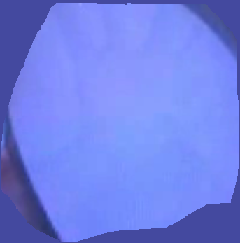 File:Discolouration 2.png