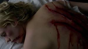 File:Sookie scar.jpg