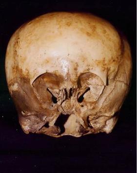 File:Starchild skull 1.jpg