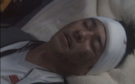 File:Sakomizu wounded.png