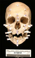 Wayne County Jane Doe 2005 skull.jpg