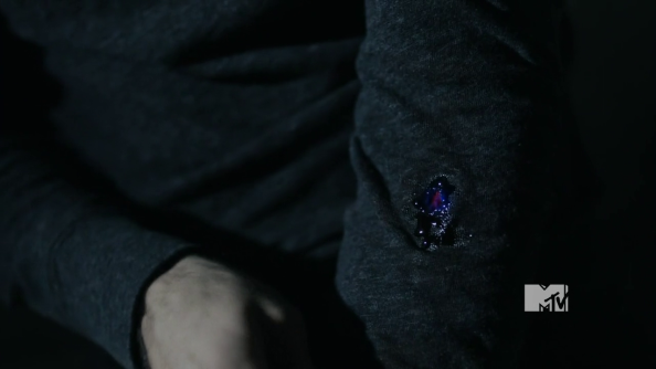 File:594px-Derek infected with wolfsbane bullet.png