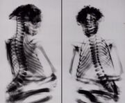 X-rays of mummy
