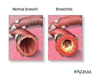 Adam bronchitis