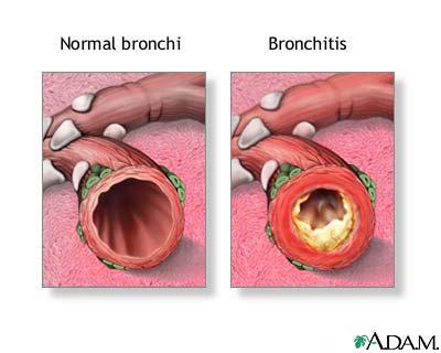 File:Adam bronchitis.jpg