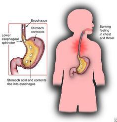 Heartburn-prognosis