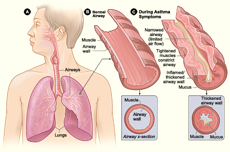 File:Asthma attack-illustration NIH 2.jpg