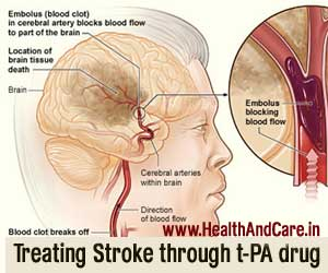 File:Treatment-of-stroke.jpg