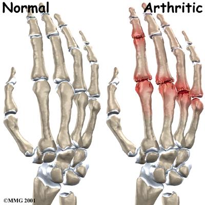 File:Hand finger joint causes01.jpg