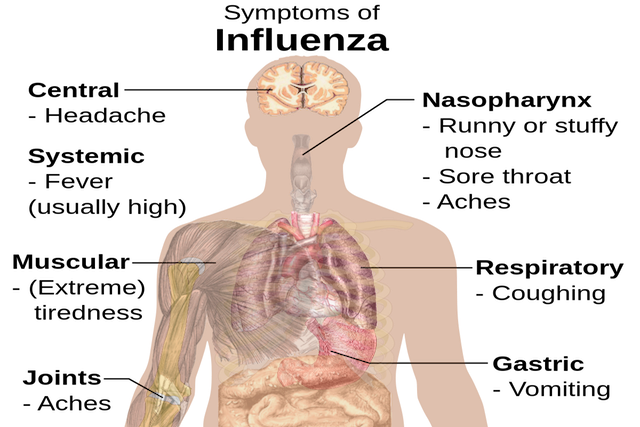 File:1200px-Symptoms of influenza svg .png