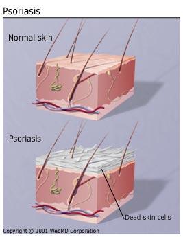 File:Understanding psoriasis basics.jpg