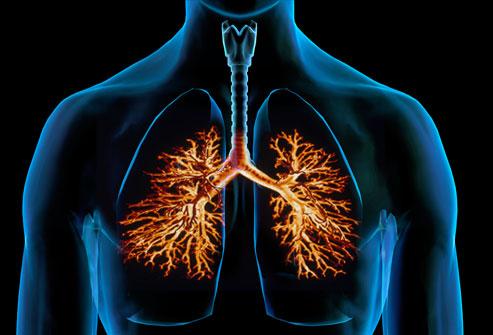 File:Webmd composite image of bronchitis.jpg