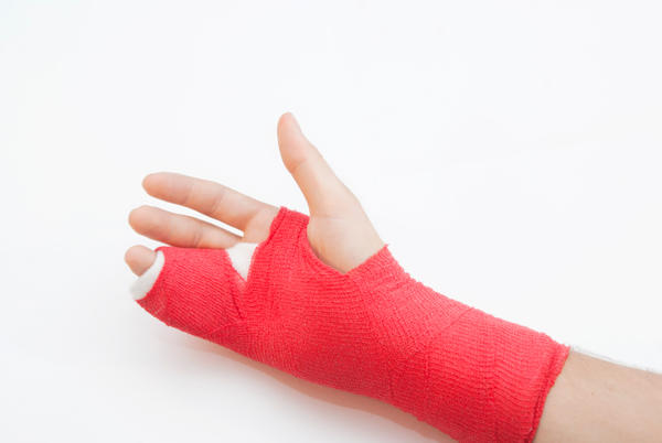 File:Hand cast.jpeg